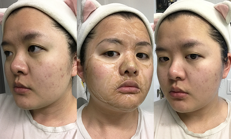 hanacure mask reviews